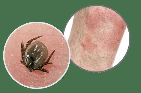 Chronische Borreliose und Mitochondrien Therapie Borreliose Wanderroete Zecke 1
